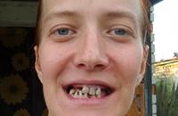 Помогите одинокой маме инвалиду Рясной Устиньи возвратить для жизни зубы