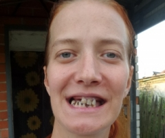 Помогите одинокой маме инвалиду Рясной Устинье вылечить зубы!