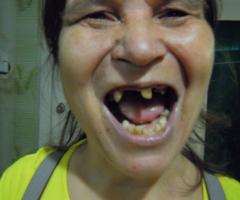Помогите вылечить зубы Ольге Даниловой инвалиду, одинокой маме из Удмуртии