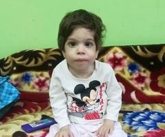 Алёна из Ростова-на-Дону, 4 года, врождённый порок ЖКТ, задержка развития