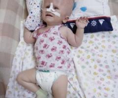 Вероничка из Хакасии. 2 года. Проходит реабилитацию после тяжёлой операции.