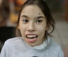Настенька. Сиротаиз дома - интерната Волгоградской Области. 14 лет. Приехала на операцию и реабилитацию.