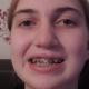 Без вашей  помощи, Элина так бы и осталась с кривыми зубами!