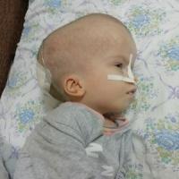 Сабрина из Камчатского Края, 7 лет. Проходит реабилитацию после тяжёлой операции.